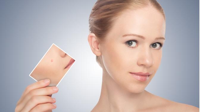 Новообразования кожи – что это такое и нужно ли их удалять?