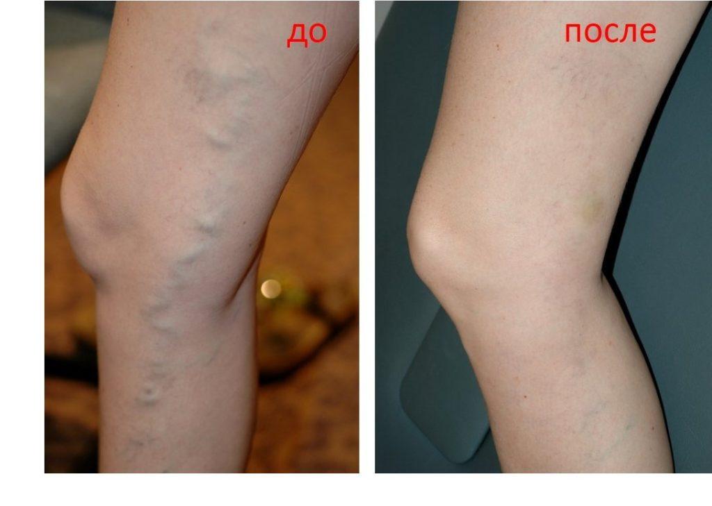 Склеропатия при варикозе