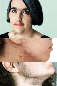 Гиперандрогения: причины, симптомы, диагностика и лечение гиперандрогении
