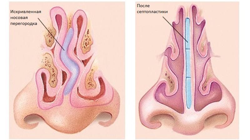 Септопластика. Выравнивание носовой перегородки