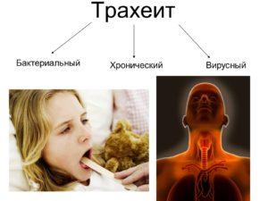 Типы трахеита