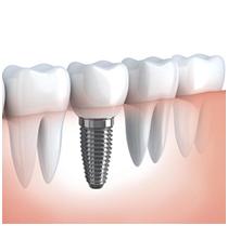 Протезирование зубов — виды и способы