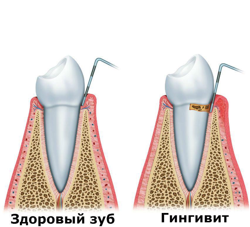 Здоровый зуб и гингивит